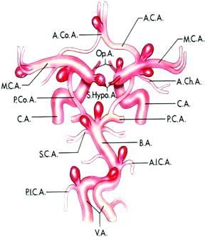 顱內動脈瘤常見位置