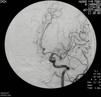 右後交通動脈動脈瘤