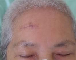 腦出血內視鏡手術