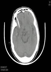 常見腦出血的治療實例